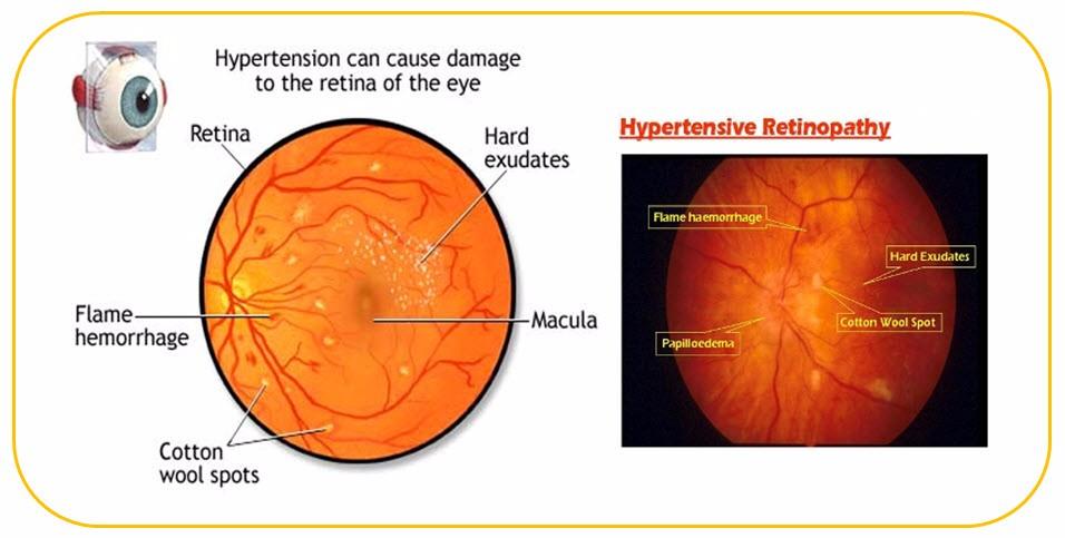 Hypertensive Retinopathy Malpani Eye Hospital